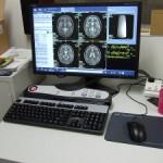 MRI-b600